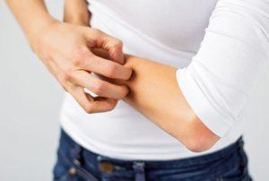 Alergia o piel sensible
